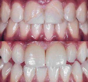 facetas dentárias em cerâmica