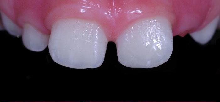 Odontopediatria - Depois