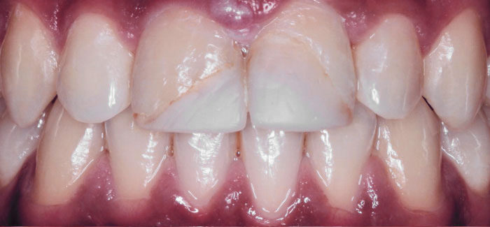 Facetas dentárias em cerâmica - Antes