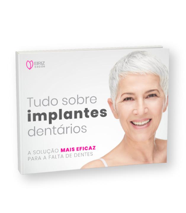 Ebook Tudo sobre implantes dentários