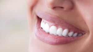 Problemas nos dentes