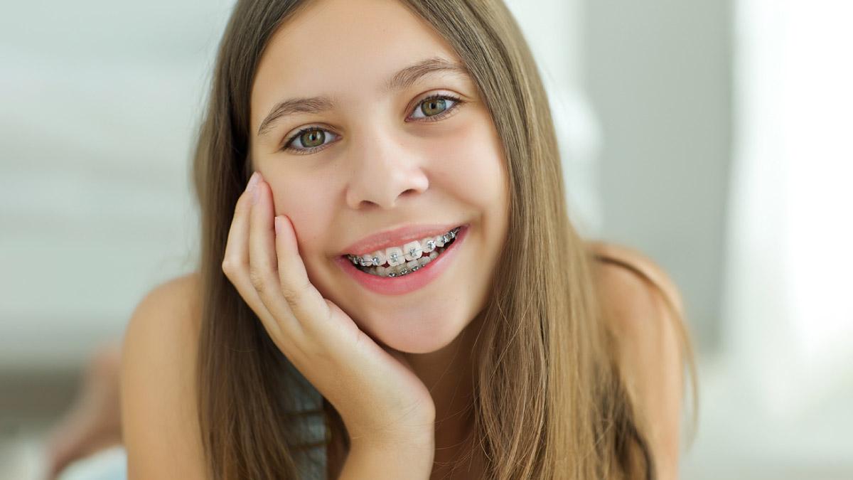 aparelho dentário + idade